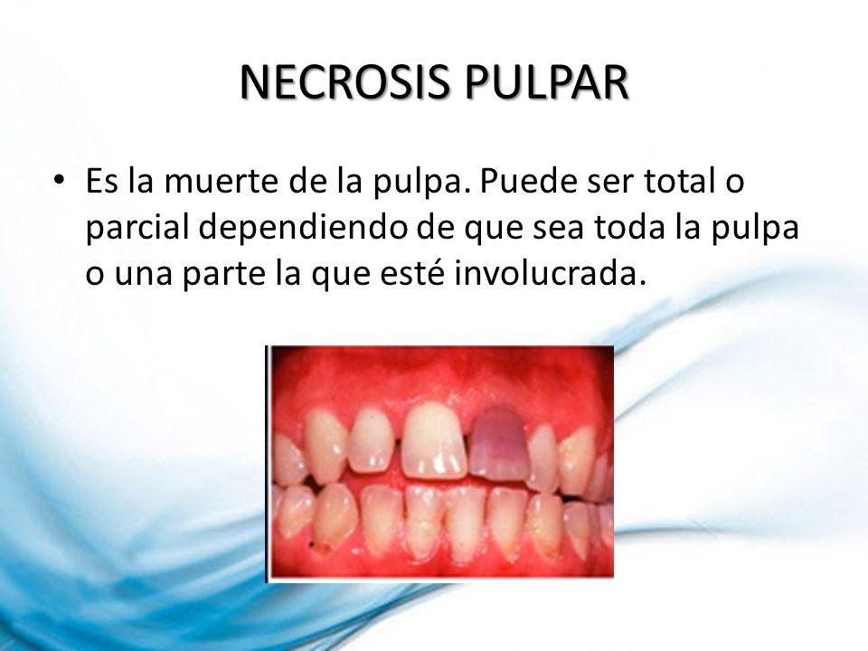 NECROSIS PULPAR Es la muerte de la pulpa.