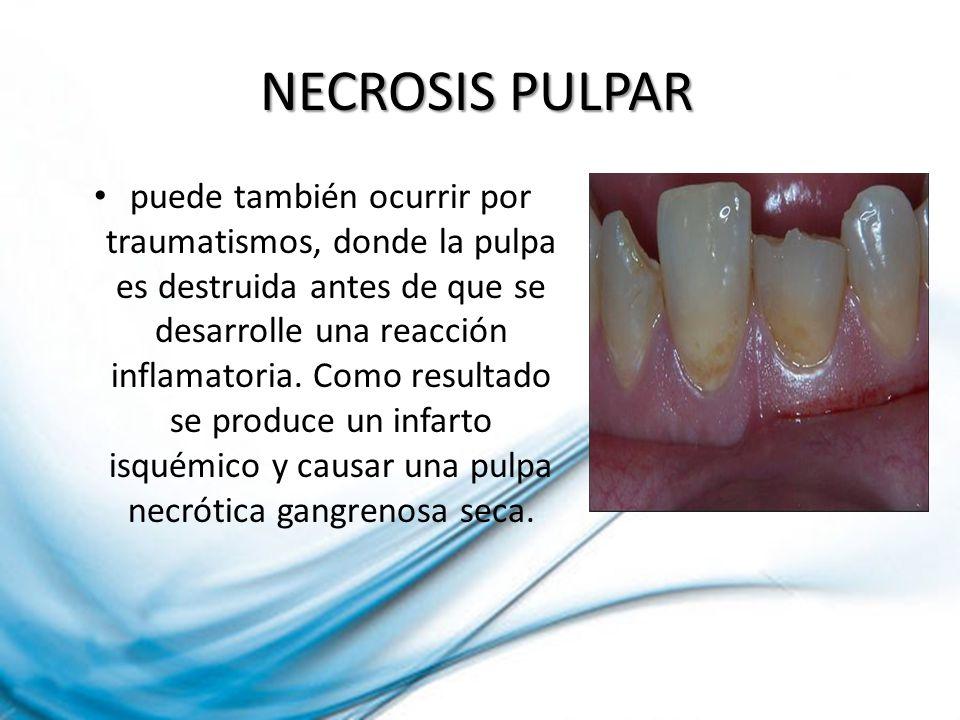NECROSIS PULPAR