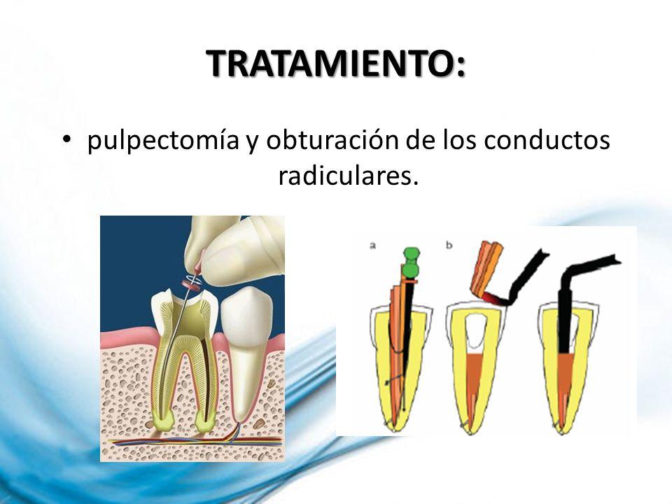 pulpectomía y obturación de los conductos radiculares.