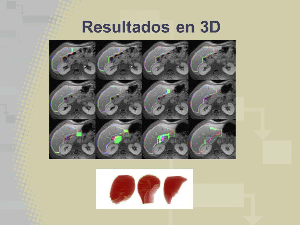 Resultados en 3D