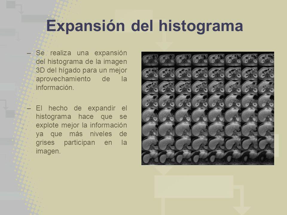 Expansión del histograma