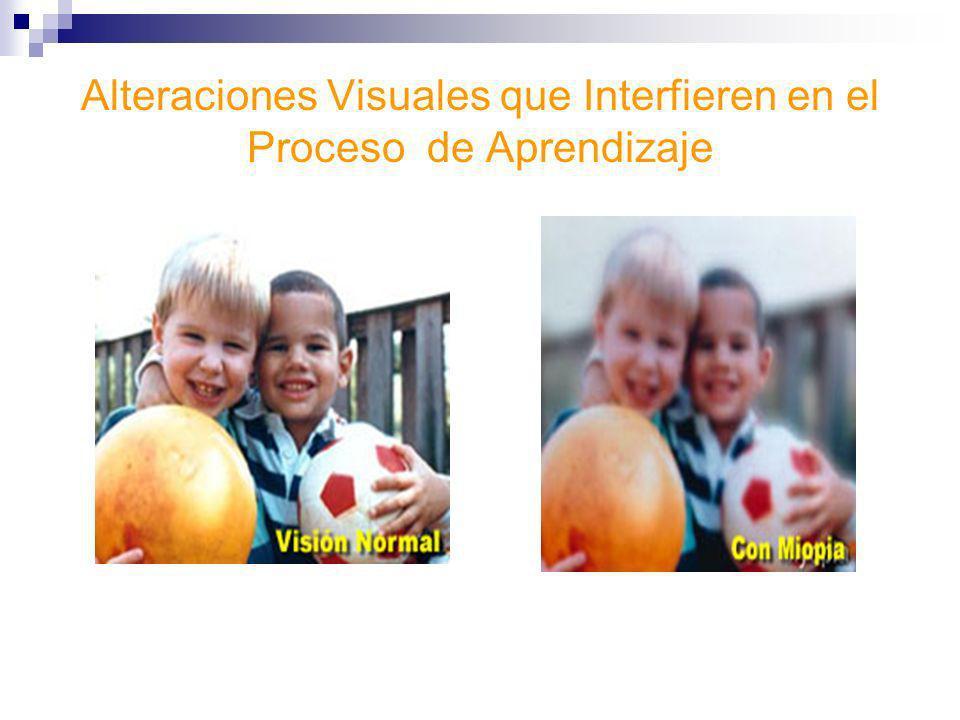 Alteraciones Visuales que Interfieren en el Proceso de Aprendizaje