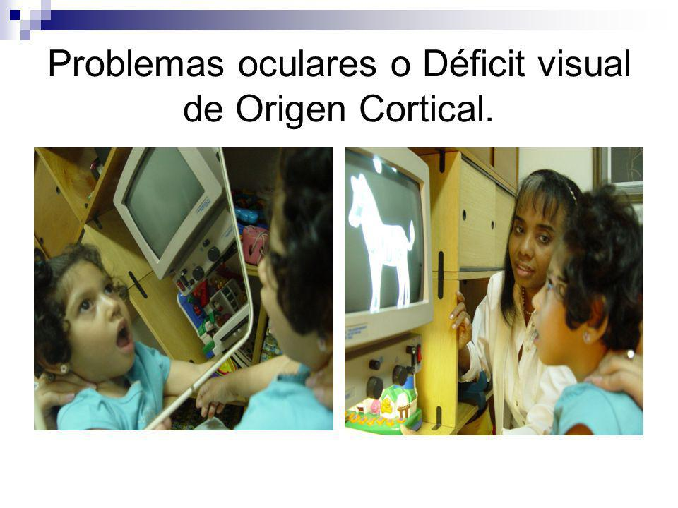 Problemas oculares o Déficit visual de Origen Cortical.