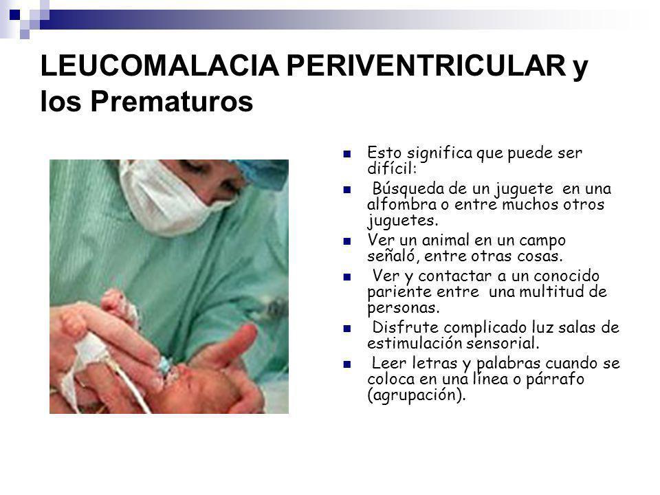 LEUCOMALACIA PERIVENTRICULAR y los Prematuros