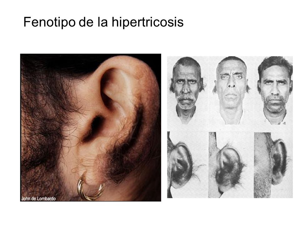 Fenotipo de la hipertricosis