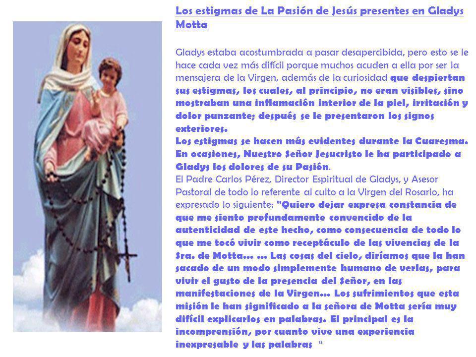 Los estigmas de La Pasión de Jesús presentes en Gladys Motta