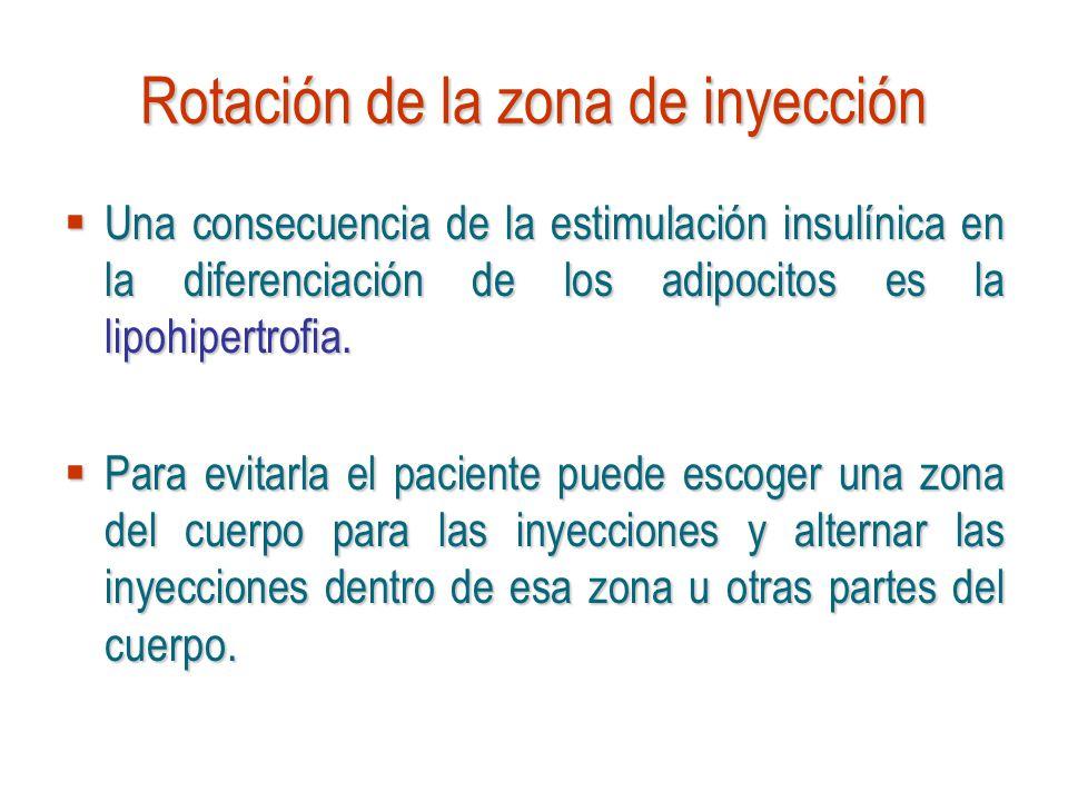 Rotación de la zona de inyección