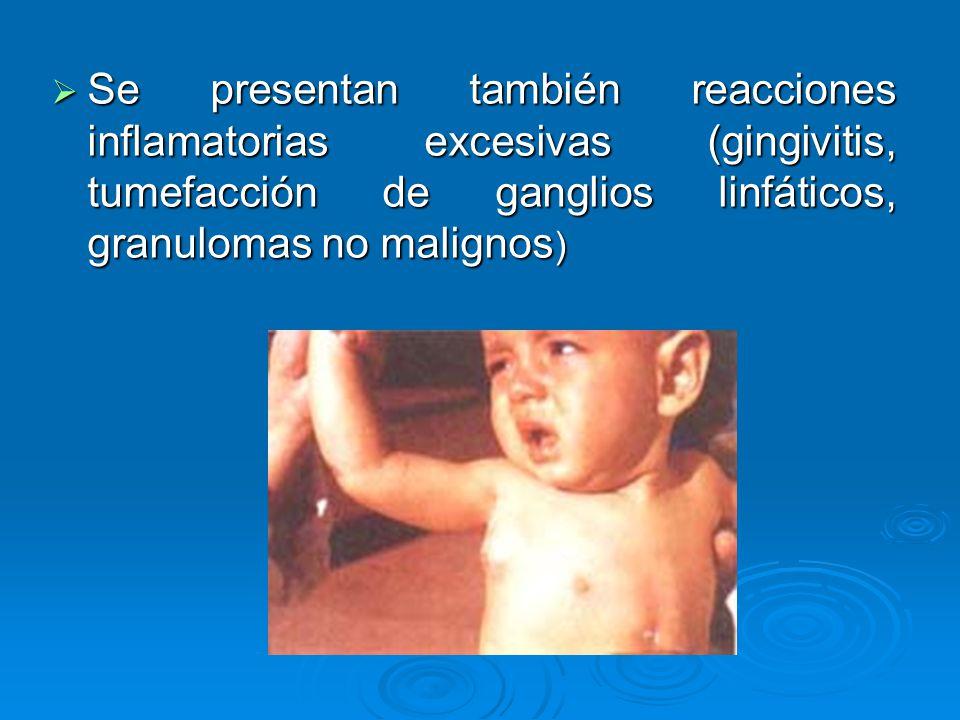 Se presentan también reacciones inflamatorias excesivas (gingivitis, tumefacción de ganglios linfáticos, granulomas no malignos)
