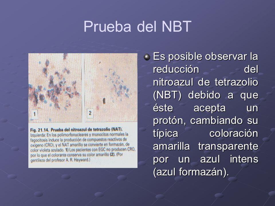 Prueba del NBT