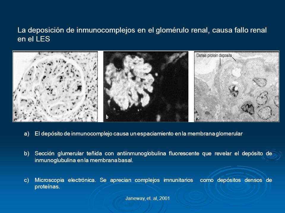 La deposición de inmunocomplejos en el glomérulo renal, causa fallo renal en el LES