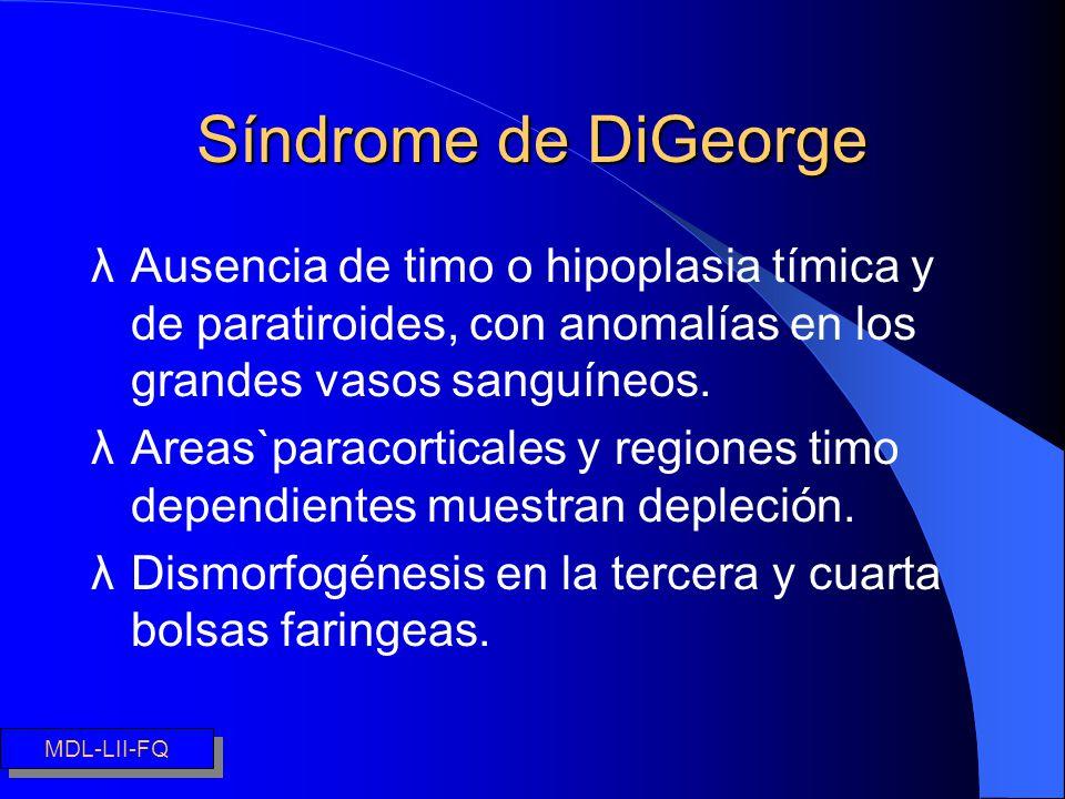 Síndrome de DiGeorge Ausencia de timo o hipoplasia tímica y de paratiroides, con anomalías en los grandes vasos sanguíneos.