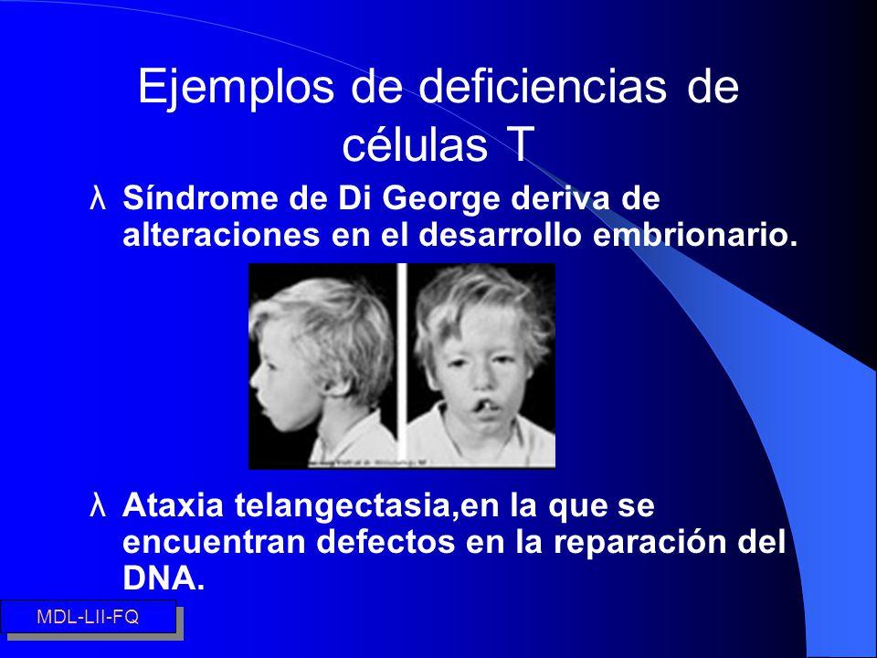 Ejemplos de deficiencias de células T