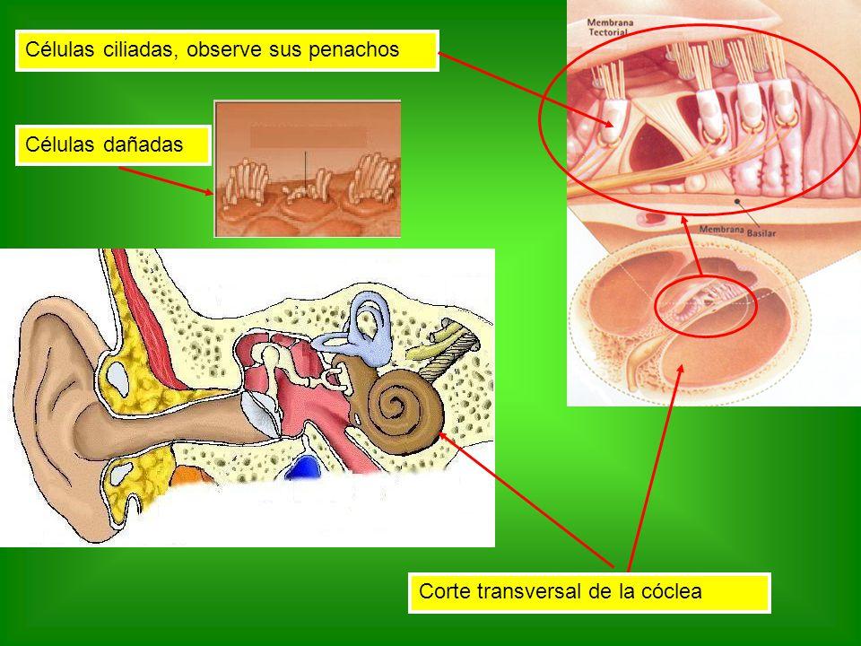 Células ciliadas, observe sus penachos