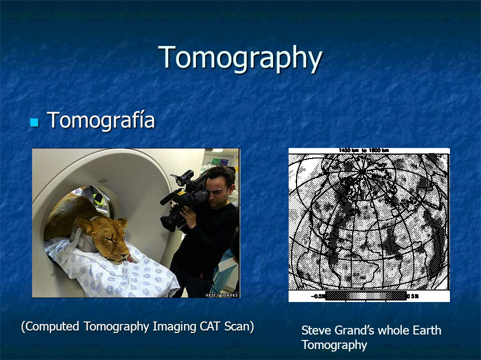 Tomography Tomografía (Computed Tomography Imaging CAT Scan)