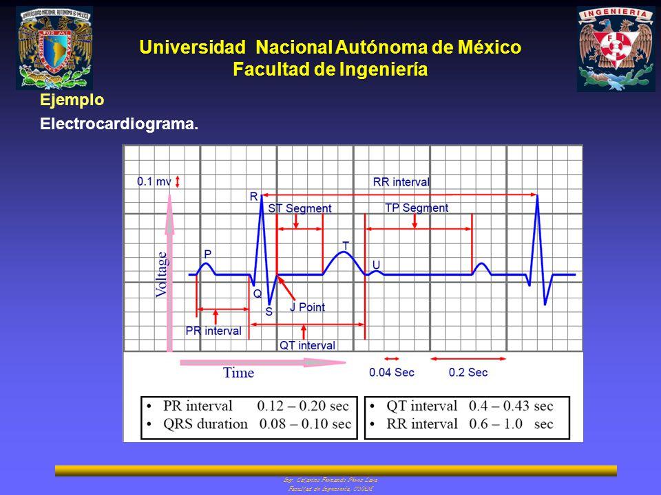 Ejemplo Electrocardiograma.