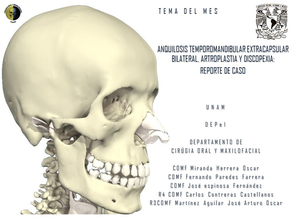 TEMA DEL MES ANQUILOSIS TEMPOROMANDIBULAR EXTRACAPSULAR BILATERAL, ARTROPLASTIA Y DISCOPEXIA: REPORTE DE CASO.
