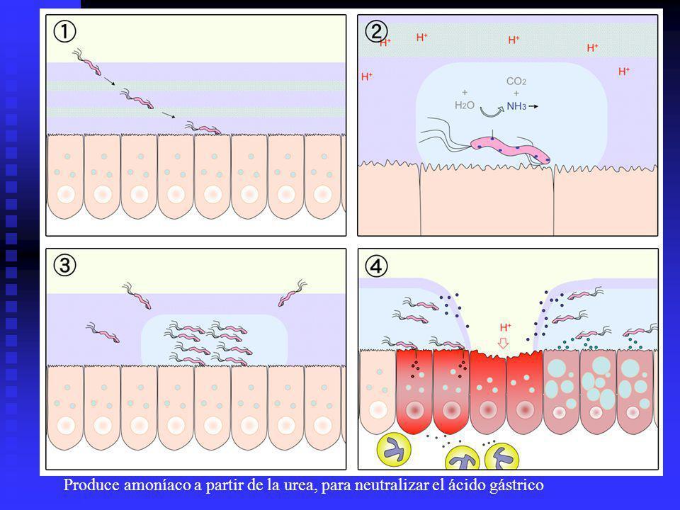 Modo de infección de H. pylori:1. H