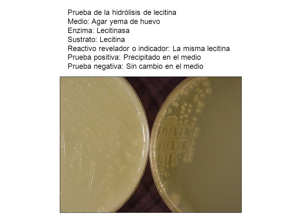 Prueba de la hidrólisis de lecitina