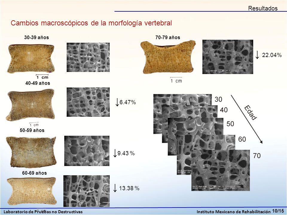 Resultados Cambios macroscópicos de la morfología vertebral. 30-39 años. 70-79 años. ↓ 22.04% 40-49 años.