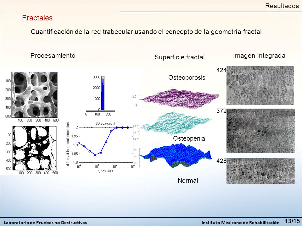 Resultados Fractales. - Cuantificación de la red trabecular usando el concepto de la geometría fractal -