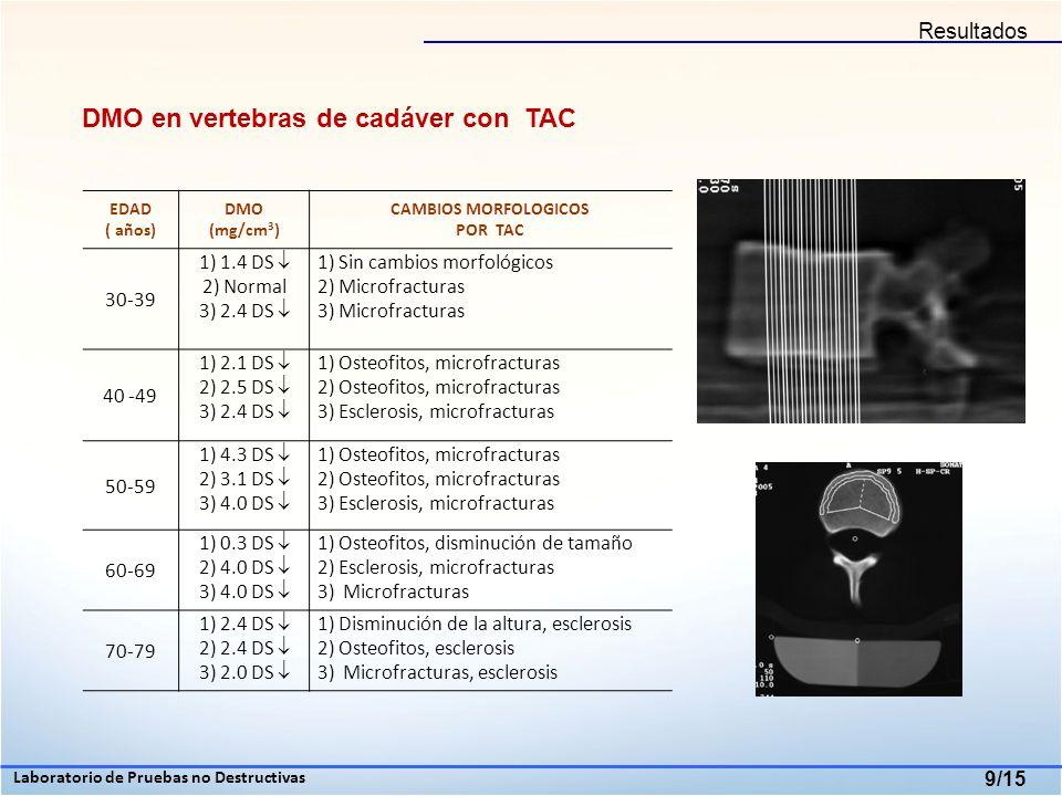 DMO en vertebras de cadáver con TAC