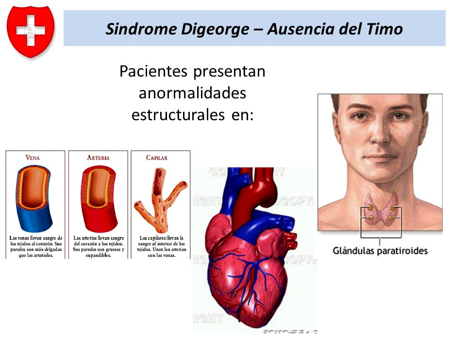 Sindrome Digeorge – Ausencia del Timo