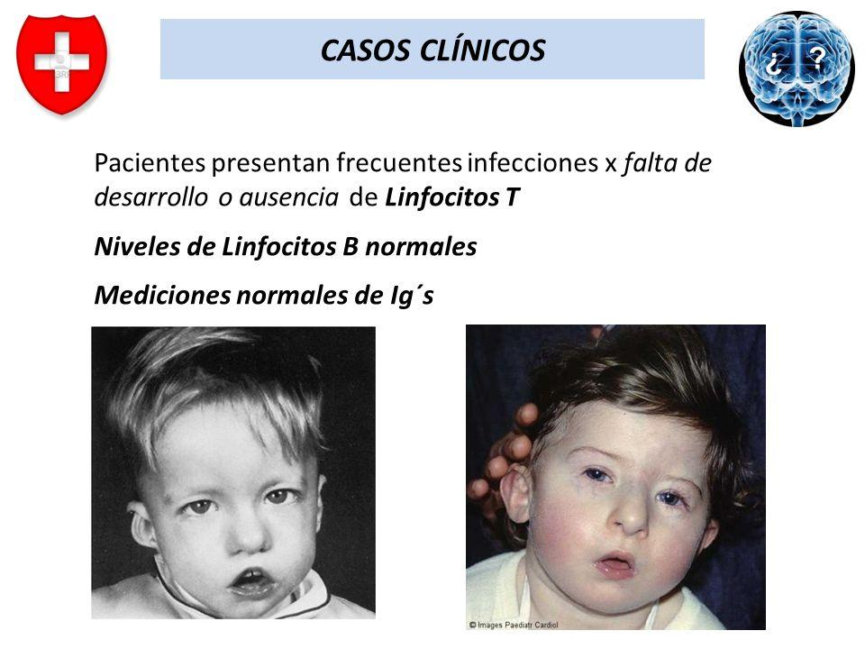 CASOS CLÍNICOS Pacientes presentan frecuentes infecciones x falta de desarrollo o ausencia de Linfocitos T.