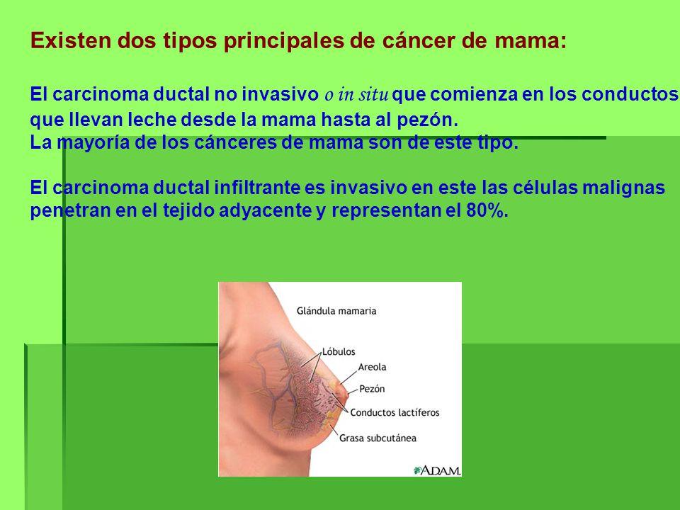 Existen dos tipos principales de cáncer de mama: