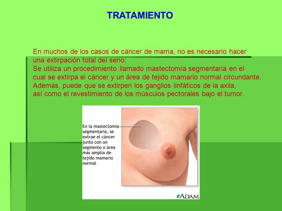 TRATAMIENTO En muchos de los casos de cáncer de mama, no es necesario hacer. una extirpación total del seno;