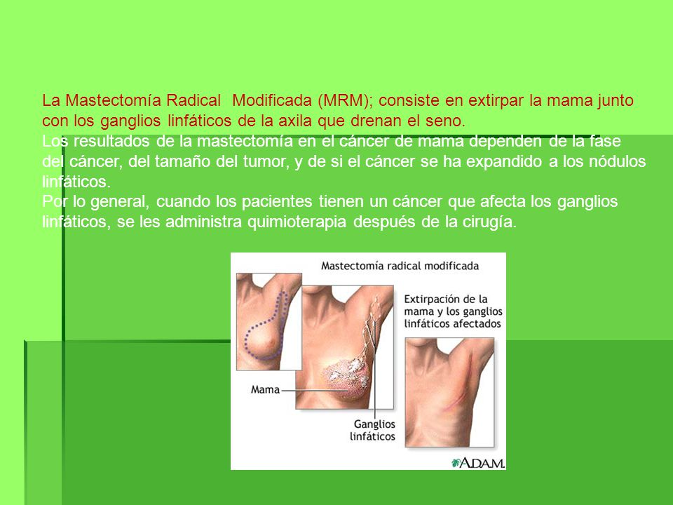 La Mastectomía Radical Modificada (MRM); consiste en extirpar la mama junto