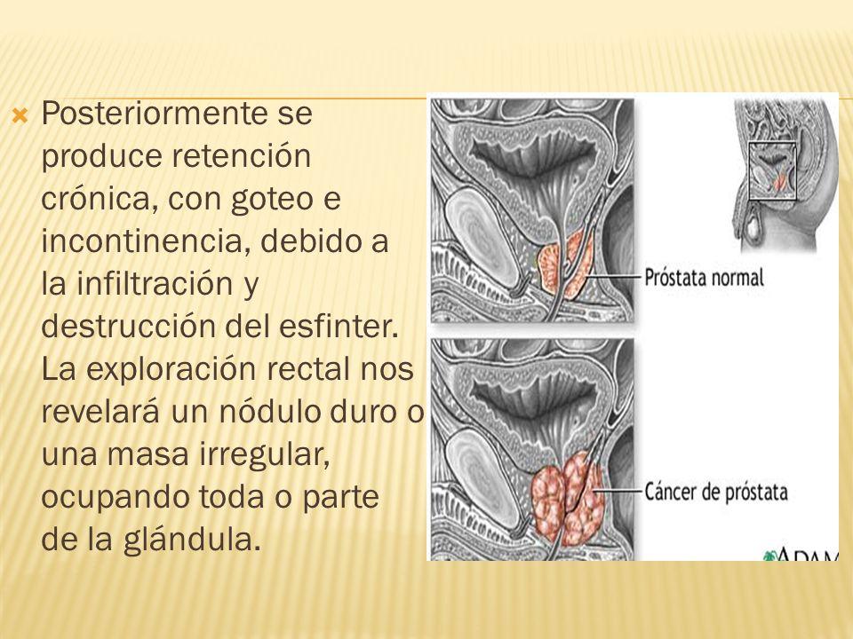 Posteriormente se produce retención crónica, con goteo e incontinencia, debido a la infiltración y destrucción del esfinter.
