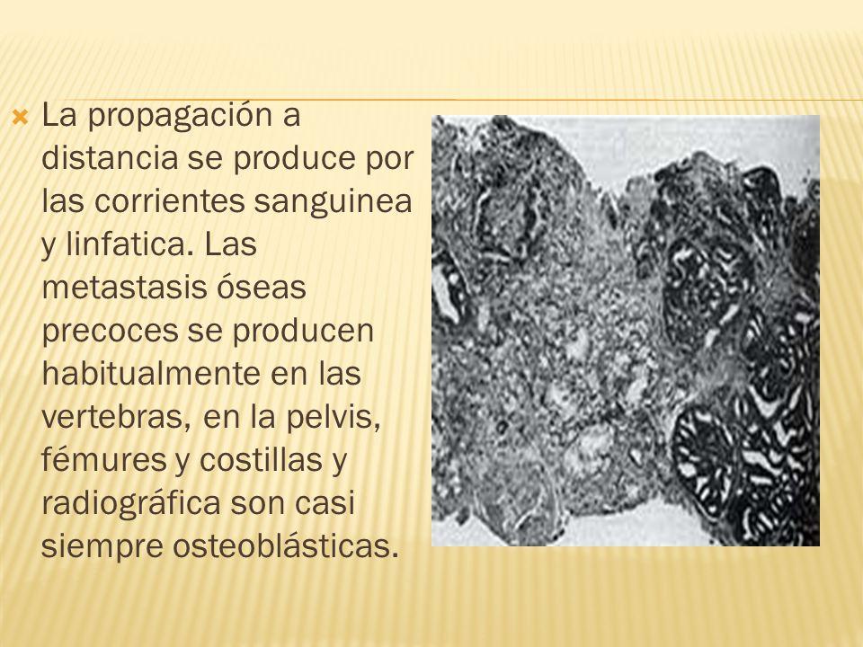 La propagación a distancia se produce por las corrientes sanguinea y linfatica.