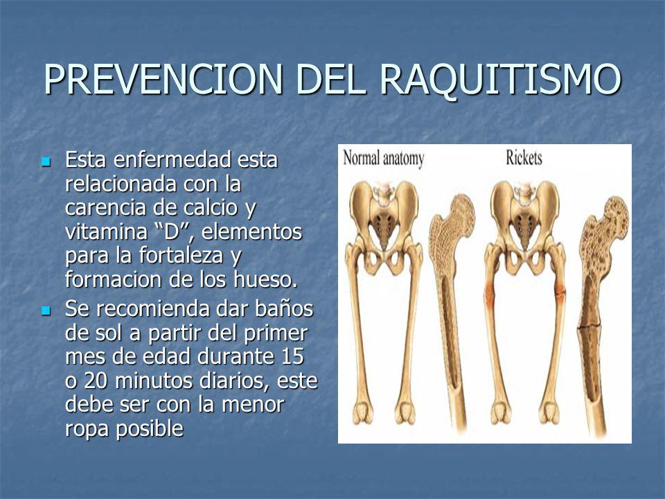 PREVENCION DEL RAQUITISMO