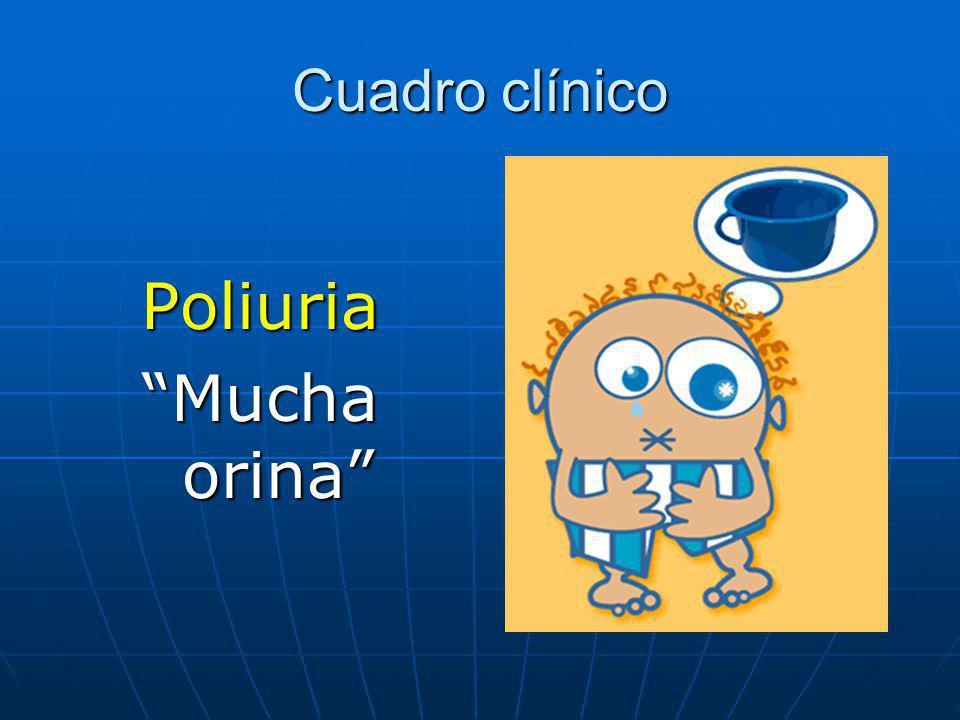 Cuadro clínico Poliuria Mucha orina