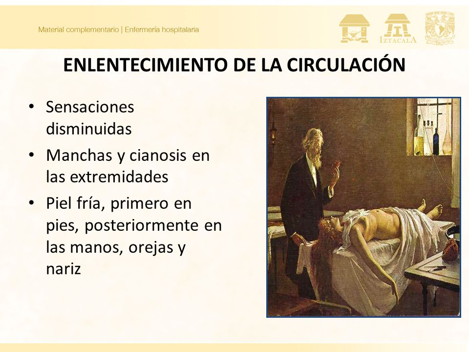 ENLENTECIMIENTO DE LA CIRCULACIÓN