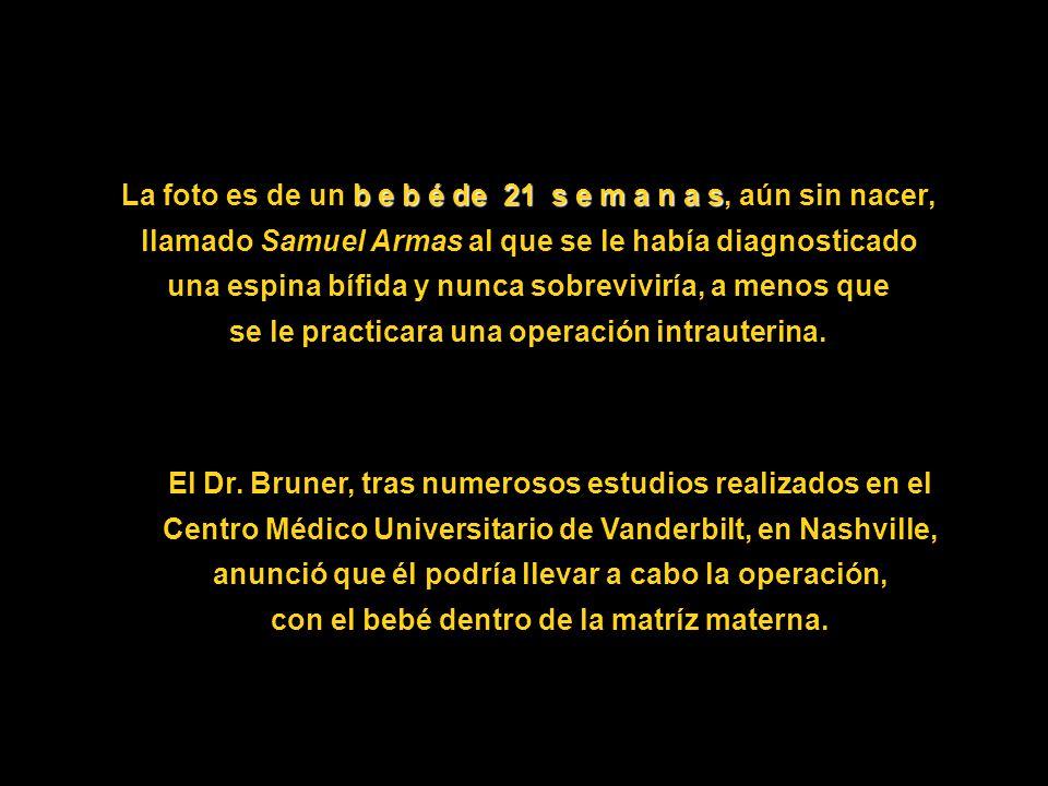 La foto es de un b e b é de 21 s e m a n a s, aún sin nacer, llamado Samuel Armas al que se le había diagnosticado una espina bífida y nunca sobreviviría, a menos que se le practicara una operación intrauterina.