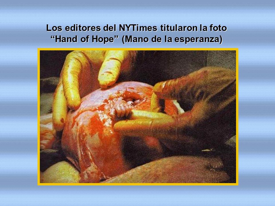 Los editores del NYTimes titularon la foto Hand of Hope (Mano de la esperanza)