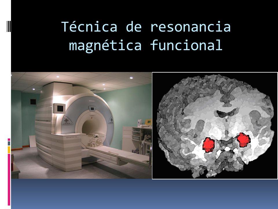 Técnica de resonancia magnética funcional