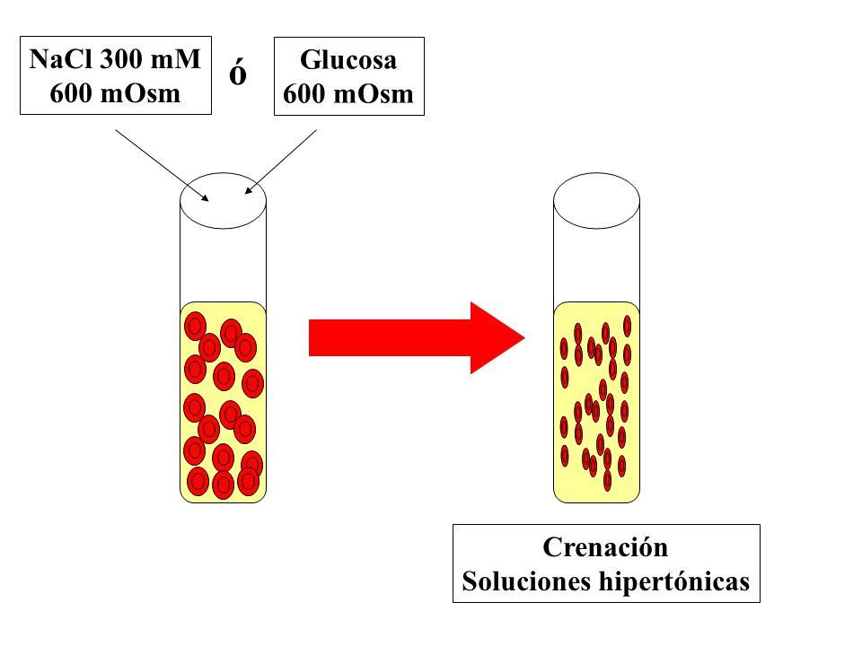 Soluciones hipertónicas