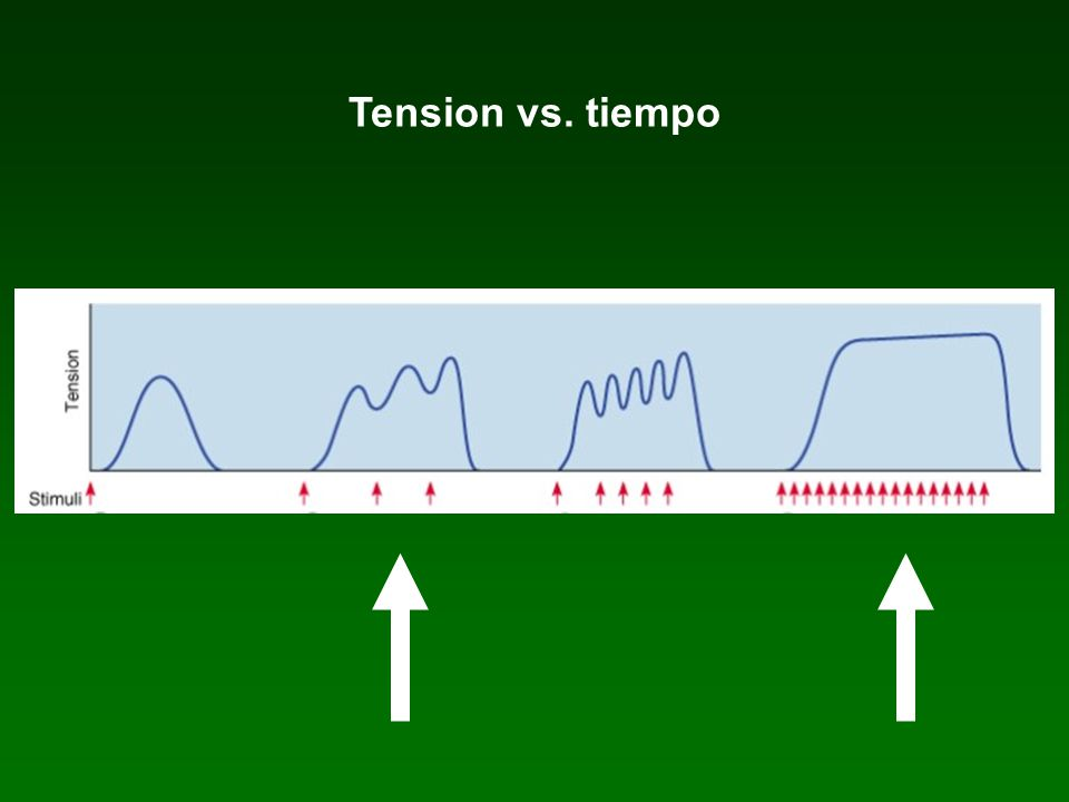 Tension vs. tiempo