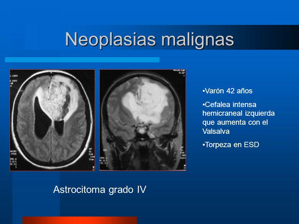 Neoplasias malignas Astrocitoma grado IV Varón 42 años