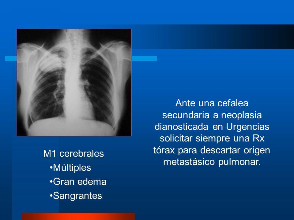 Ante una cefalea secundaria a neoplasia dianosticada en Urgencias solicitar siempre una Rx tórax para descartar origen metastásico pulmonar.