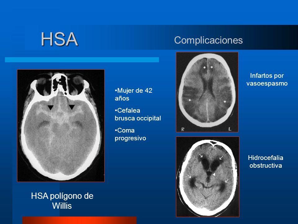 HSA Complicaciones HSA polígono de Willis Infartos por vasoespasmo