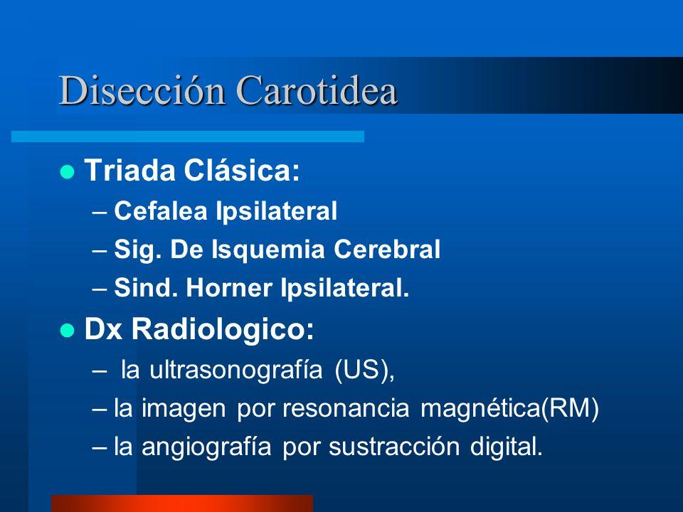 Disección Carotidea Triada Clásica: Dx Radiologico: