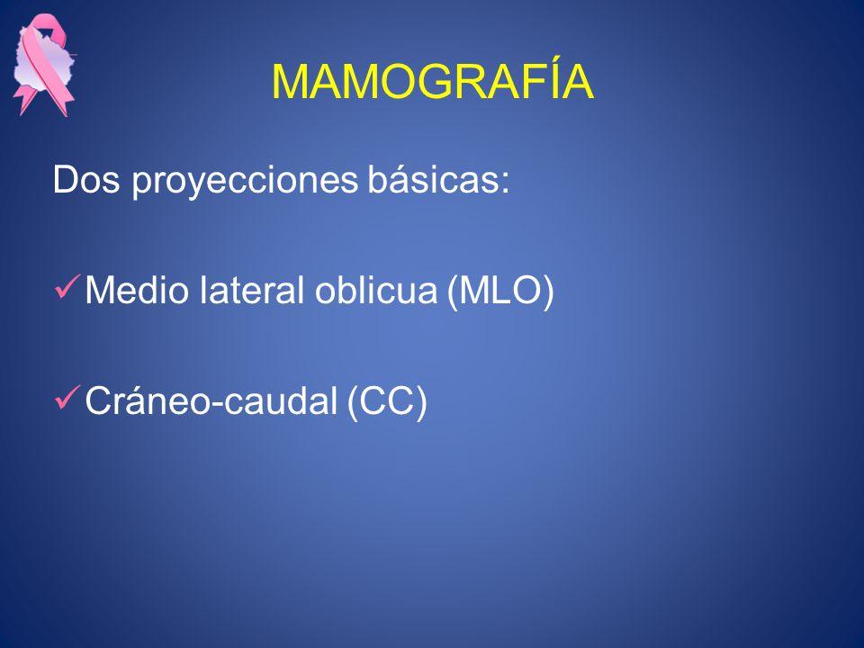 MAMOGRAFÍA Dos proyecciones básicas: Medio lateral oblicua (MLO)