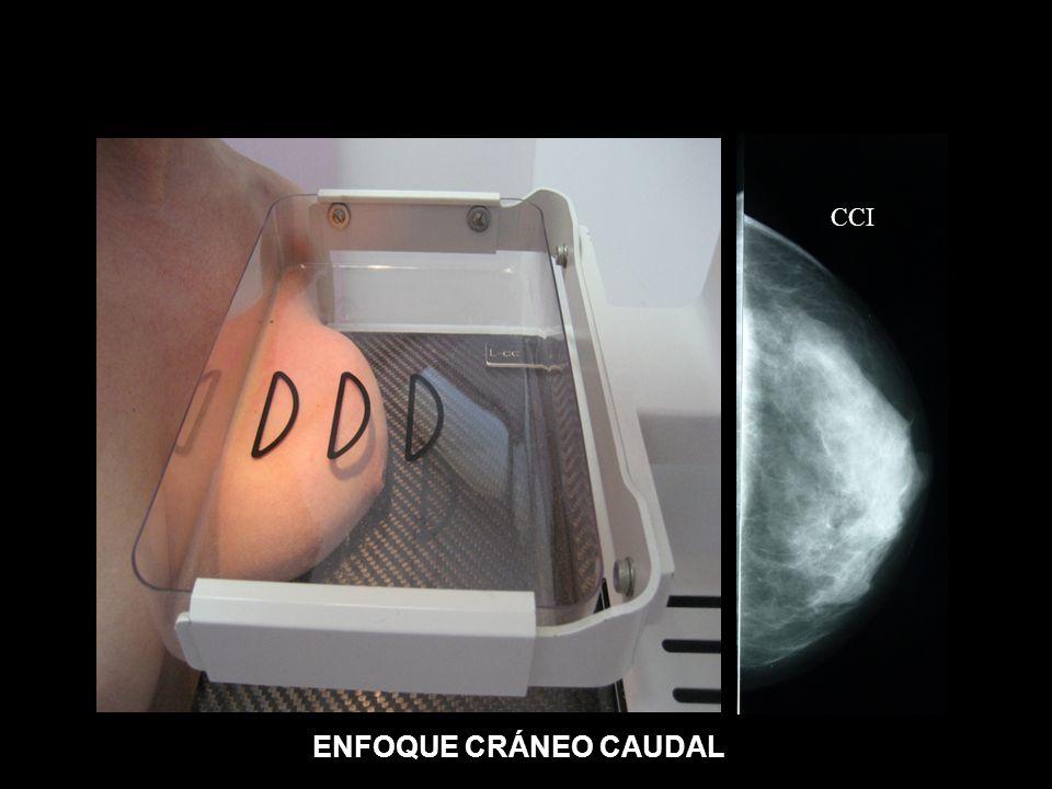 CCI ENFOQUE CRÁNEO CAUDAL