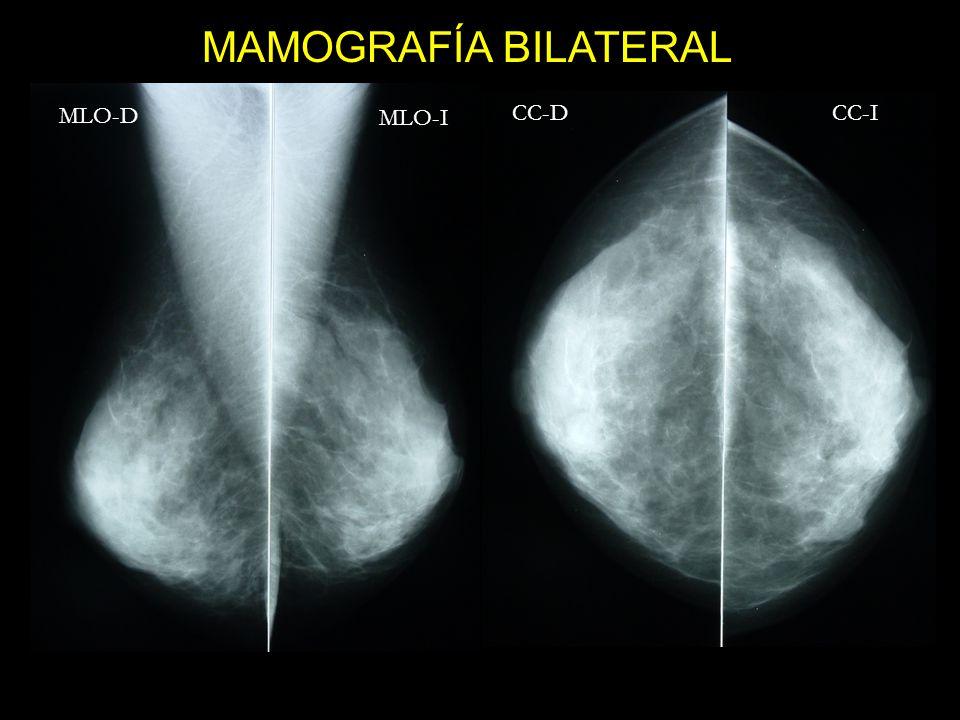 MAMOGRAFÍA BILATERAL MLO-I CC-D CC-I MLO-D