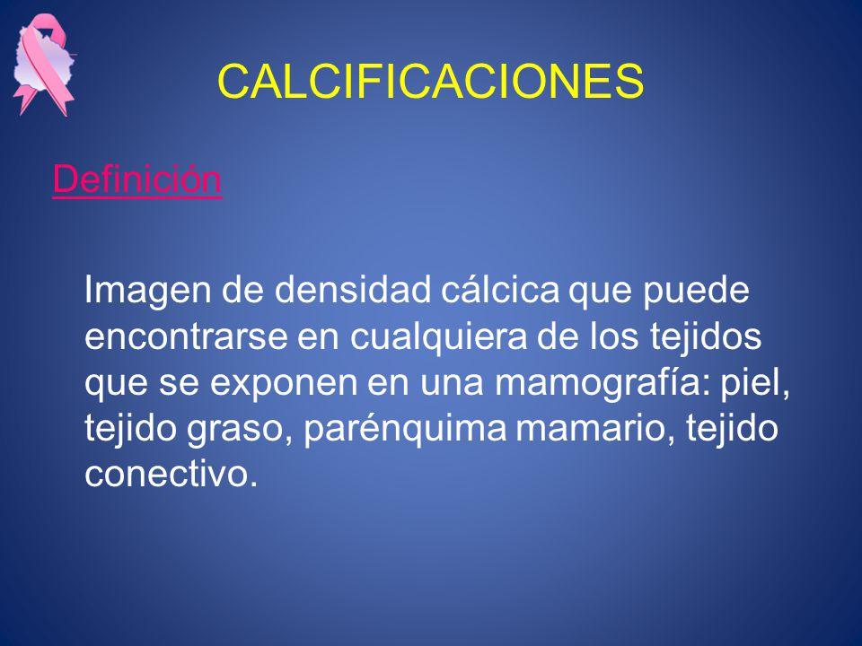 CALCIFICACIONES Definición
