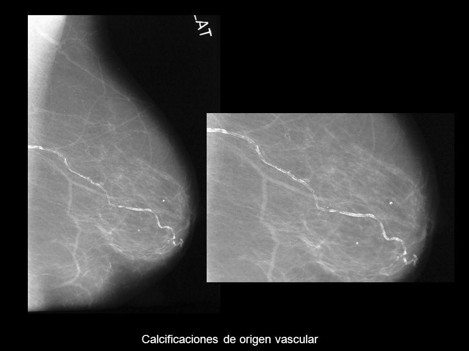 Calcificaciones de origen vascular