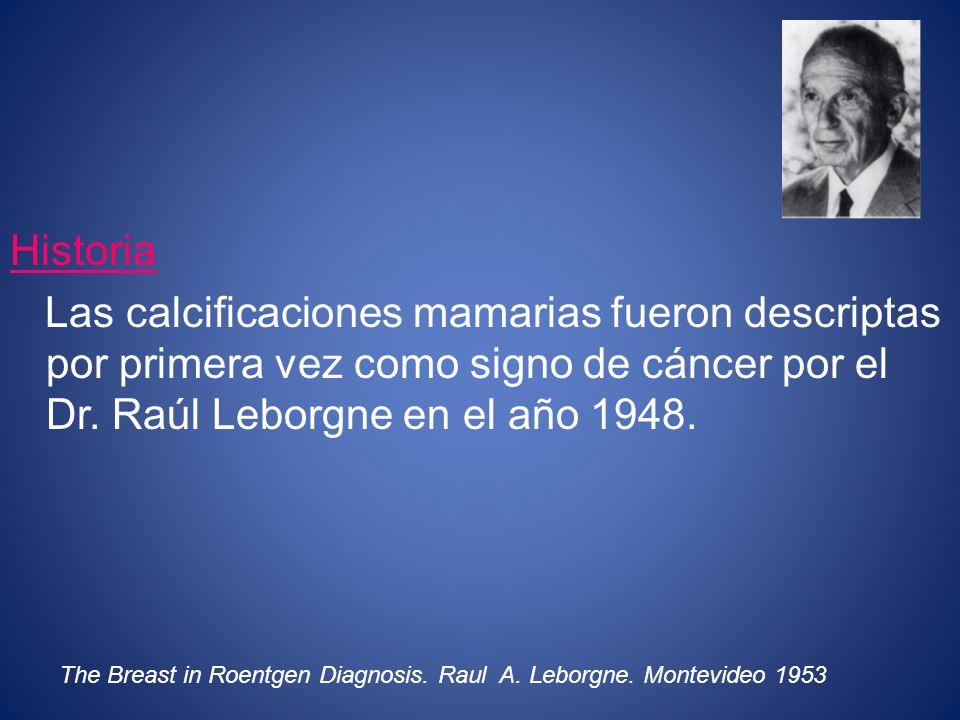 Historia Las calcificaciones mamarias fueron descriptas por primera vez como signo de cáncer por el Dr. Raúl Leborgne en el año 1948.